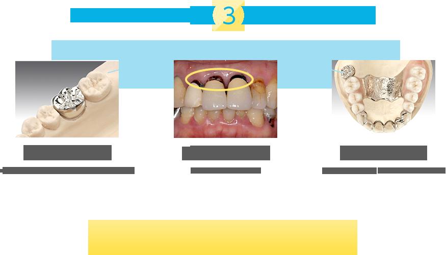 金属アレルギーになる3つの歯科材料は 見た目が金属(ニッケルクロム・コバルトクロム銅・アマルガム) 見えない金属(メタルコア・インプラント) 入れ歯の金属(保険の総入れ歯コバルト・チタンのいれ歯)