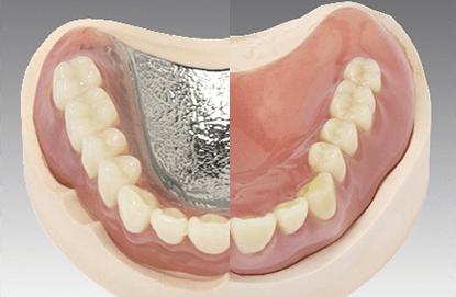 入れ歯の金属の交換